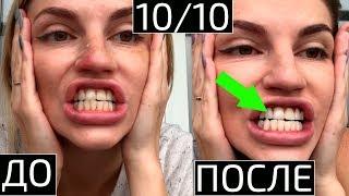 Отбелить зубы убрать кровоточивость дёсен за 20 дней Отбеливаем зубы кокосовым маслом и белой глиной