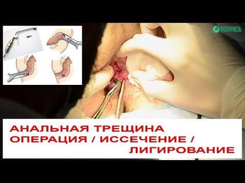 Анальная трещина  🗜 Операция по иссечению радиоволновым способом + лигирование геморроидальных узлов