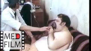 видео Сердечная астма и отек легких: первая помощь, алгоритм действий