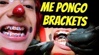 Me pusieron  brackets I Lapizin Crack