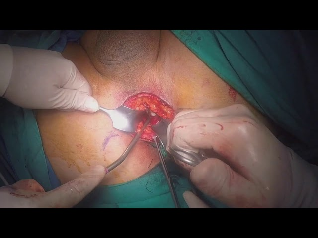 Volkan Tugcu - Robotic Transperineal Radical Prostatectomy