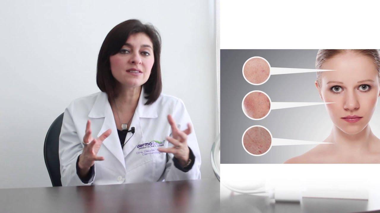acido hialuronico para el acne