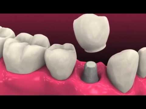 Shoreview Dentist - How Do We Do Dental Implants? Dentist In Shoreview, MN Explains