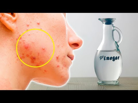 4 Cystic Acne Home Remedies that Really Work