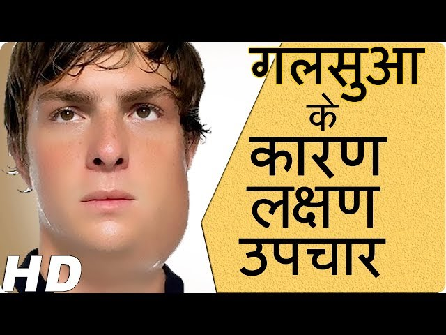 ????? - ????, ????? ?? ????? |Prevention of mumps|Mumps –Causes, symptoms and treatment &health tips