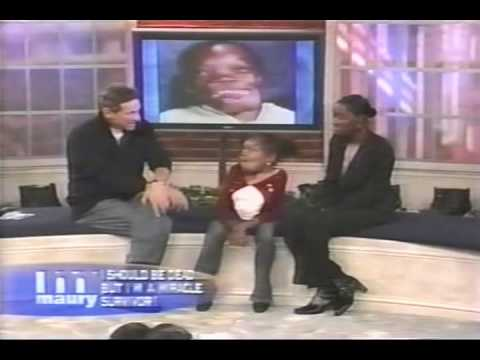 the maury show a young girl with a facial disfigurement