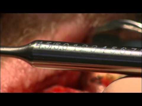 Зубные коронки: цена, виды, фото и отзывы