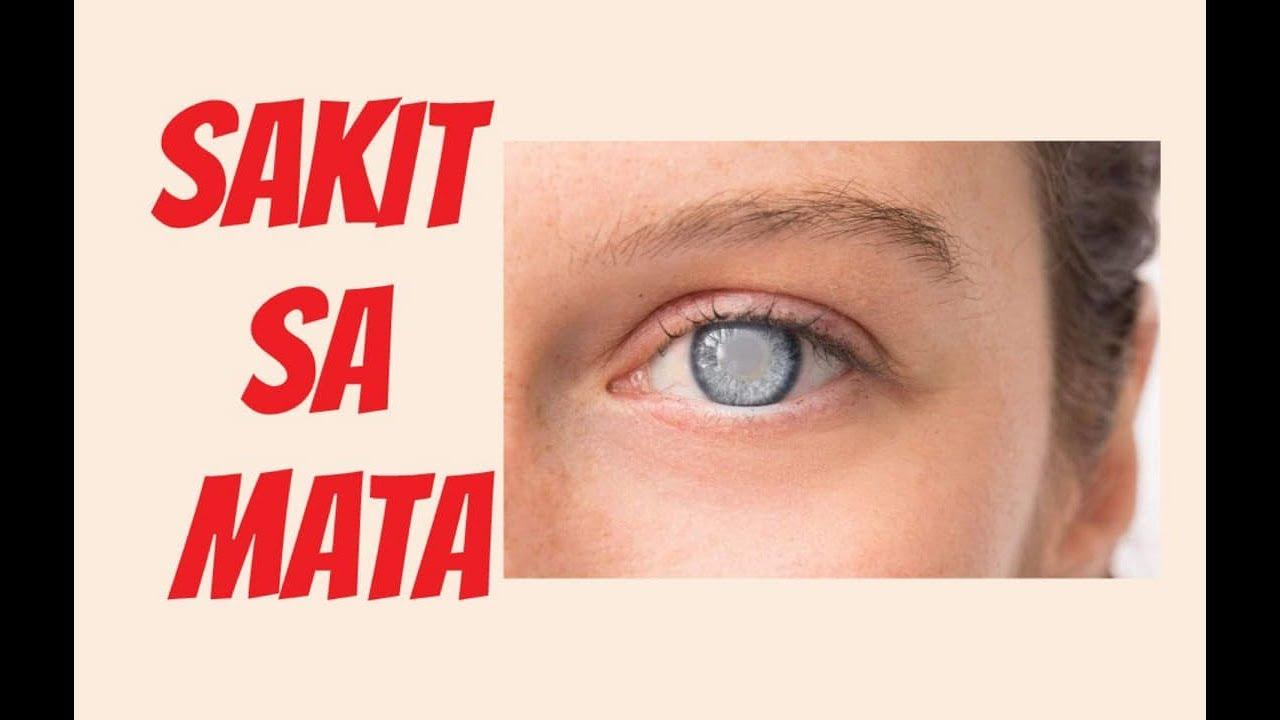 Mga Sakit sa Mata at Solusyon - Payo ni Doc Liza Ong #261