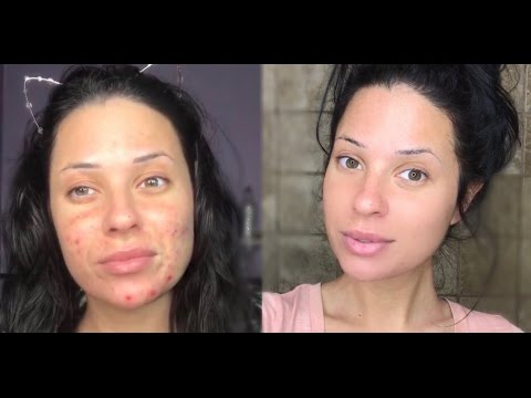 How I Cleared My Skin In 2 Days | REAL LIFE RESULTS!