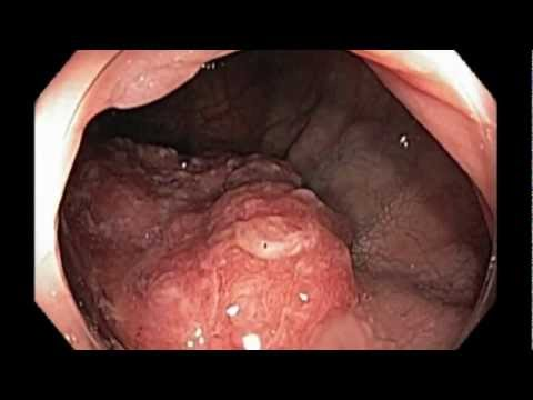 Anus removal testicular cancer
