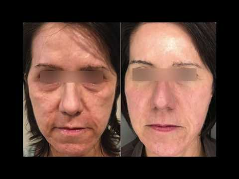 Active and Deep FX Laser Treatment Testimonial at FACE