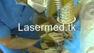 Лазерное лечение  бородавок в Молдове(Лазерное лечение бородавок в Молдове., 2011-05-24T18:08:44.000Z)