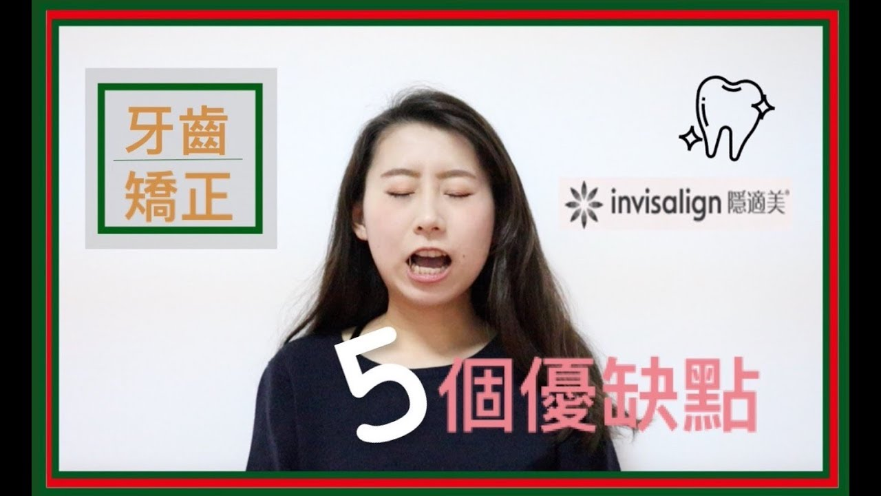 【牙套】Invisalign隱適美牙套的五個優缺點 || Samantha - YouTube