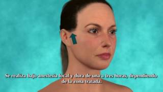 Mini Lifting Facial - Clinica Thuel