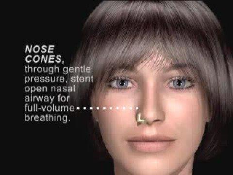 max-air nose cones