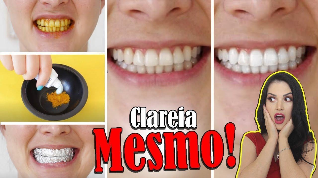 10 Maneiras De Clarear Os Dentes Em Casa Naturalmente Em 2 Minutos