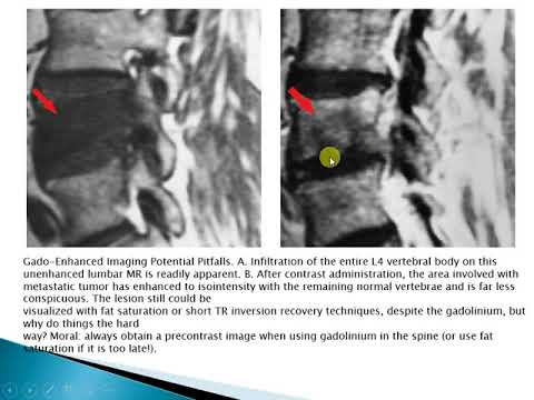 week 9 non degenerative diseases of the spine