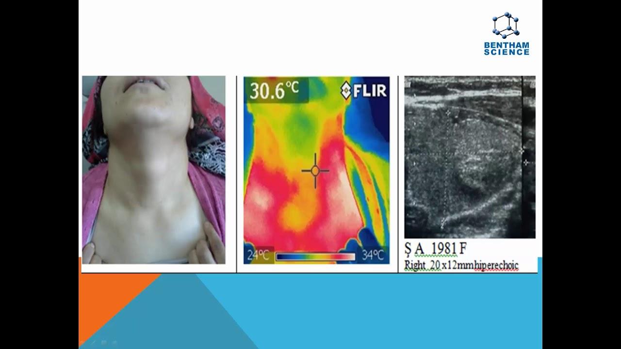 Digital infrared thermal imaging analysis of thyroid nodules By Dr  Erdem  Atalay Cetinkaya