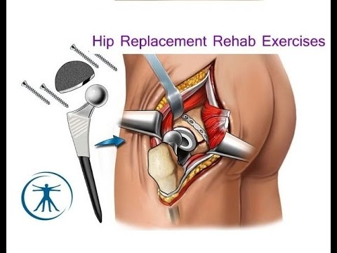 Hip Replacement Basic Rehabilitation Exercises Youtube