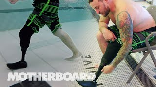 Swimming with a Prosthetic Leg: The Fin