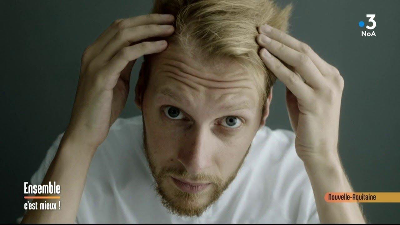 Alopecie Calvitie Que Faire Ensemble C Est Mieux Youtube