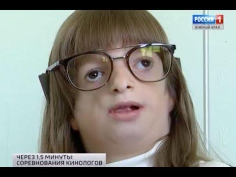 Оля Каплина, 8 лет, синдром Тричера Коллинза, требуется ортодонтическое лечение