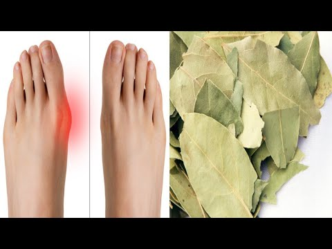 Doctors Keep This Recipe Away From The Public Here's How to Get Rid of Bunions Completely Natural!