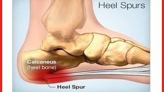 Pain in Heel of Foot | How to Get Rid of Foot Pain Caused by Heel Spurs or Pain in heel of foot