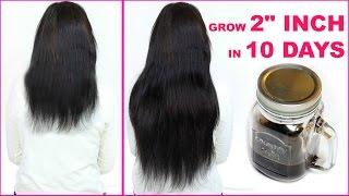 grow 2 inches in 10 days hairfall dandruff thick shiny long hair prettypriyatv