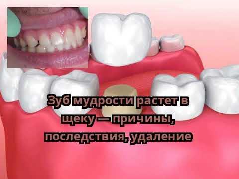 Растет зуб мудрости и болит щека