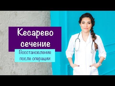 КЕСАРЕВО СЕЧЕНИЕ. Восстановление после операции | Карина Грек