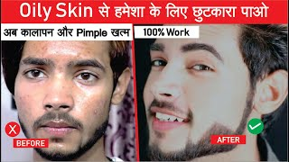 How to Control OILY Skin   Best Solution for Oily Skin - SAHIL