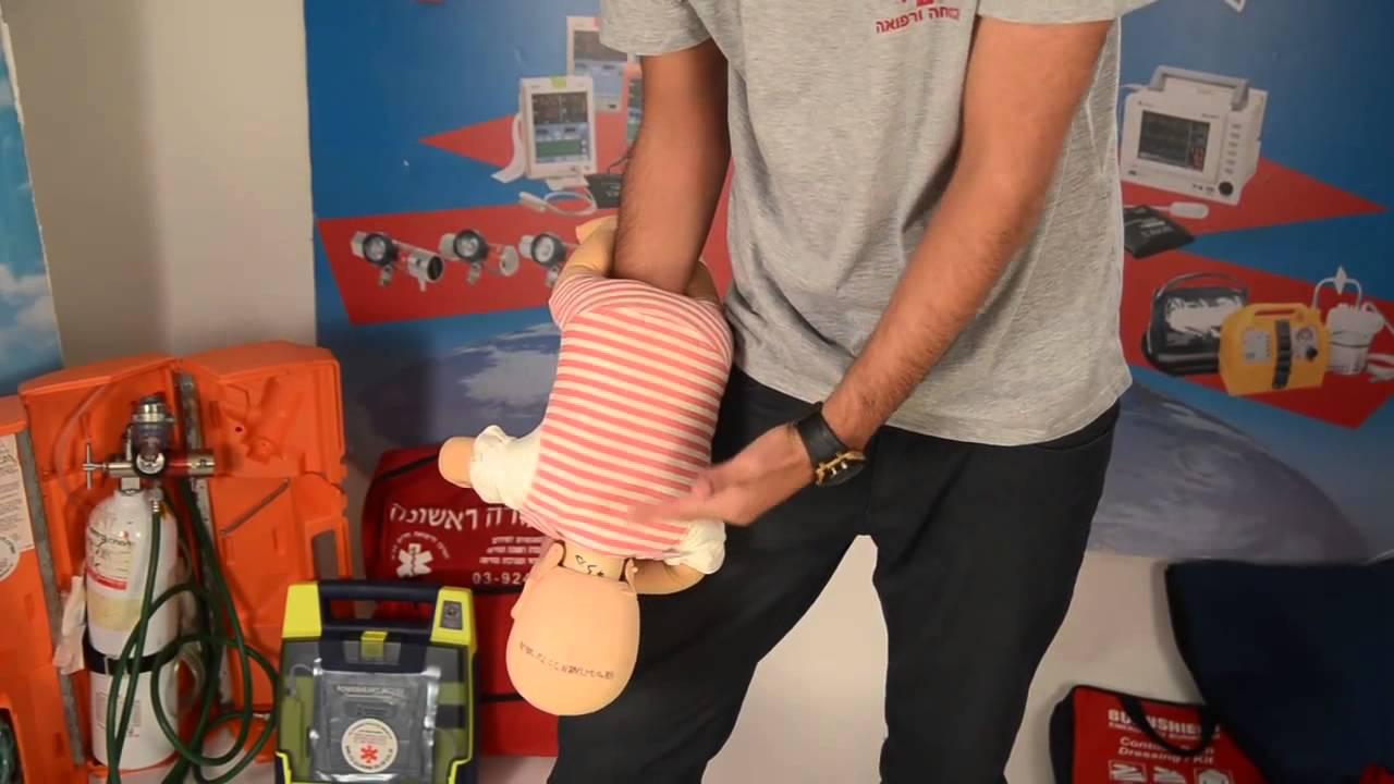 המרכז לרפואת חירום- סילוק גוף זר והחייאת תינוק