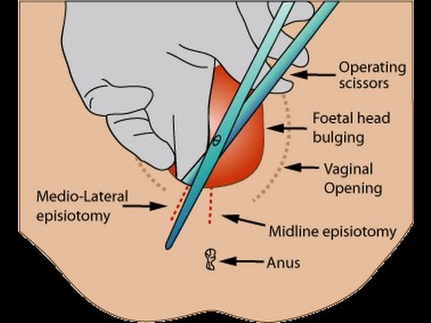 Patient Education: Normal Vaginal Childbirth