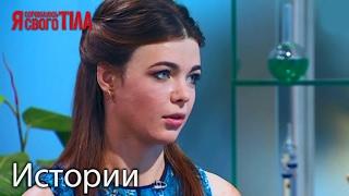 Результаты лечения ожогов Вероники Журенко