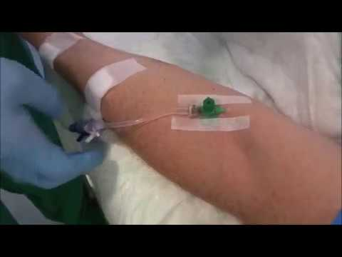 Guideline, Standard, for Peripheral IV-Line (PIV)