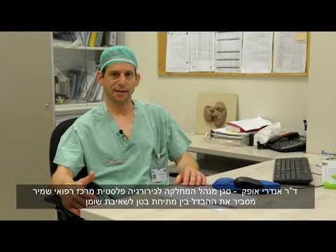 """מה ההבדל בין שאיבת שומן למתיחת בטן  - ד""""ר אנדרי אופק סגן מנהל המחלקה לכירורגיה פלסטית"""