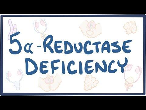 5 Alpha Reductase Deficiency Causes Symptoms Diagnosis Treatment Pathology