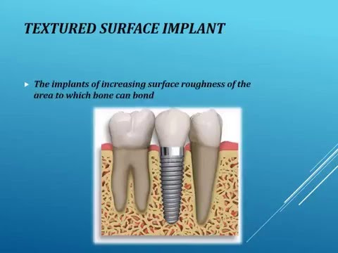 Dental implant types and classifications