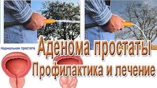 Струйный диагноз – аденома простаты. Чем лечить простатит.(, 2015-04-23T20:17:09.000Z)