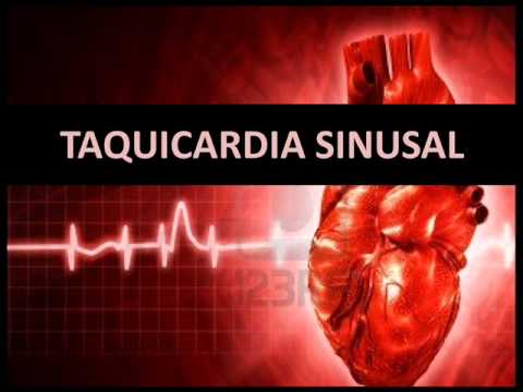 Arritmias Card 237 Acas Taquicardia Sinusal Youtube