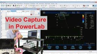 Video Capture using PowerLab