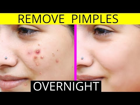 How To Remove Pimples Overnight | Acne Treatment | Anaysa