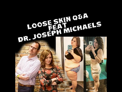 Loose Skin Q&A Feat Doctor Joseph Michaels