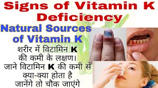 5 signs of Vitamin K deficiency in the body | know which diet will get vitamin K