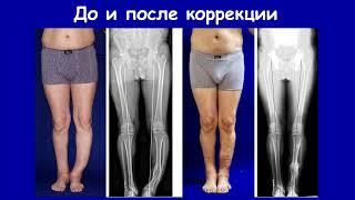 Лечение неправильно сросшихся переломов конечностей. Доктор Артемьев А.А.