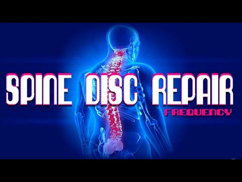 Spine Disc Repair Frequency