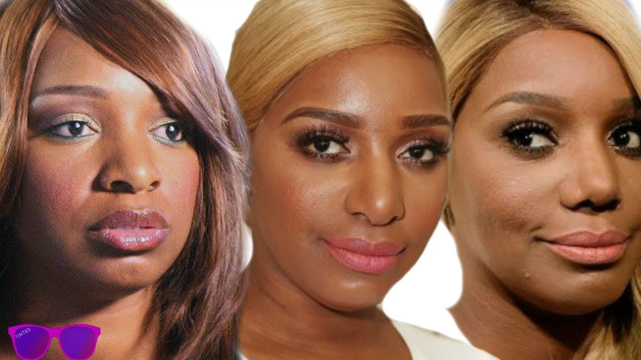 Nene Leakes Transformation and Plastic Surgery | Tinted TV