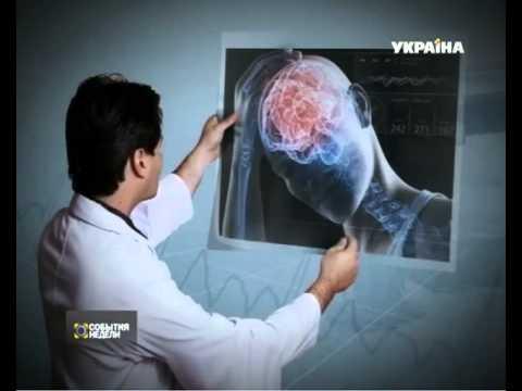 Инсульт в молодом возрасте: какие причины и симптомы. От