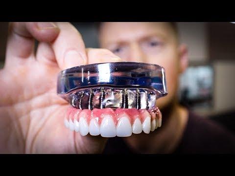 DENTURES vs Dental IMPLANTS Full Mouth Rehabilitation - See